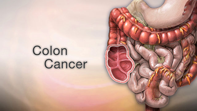 Colon and rectal cancer - A.D.A.M. Interactive Anatomy - Encyclopedia