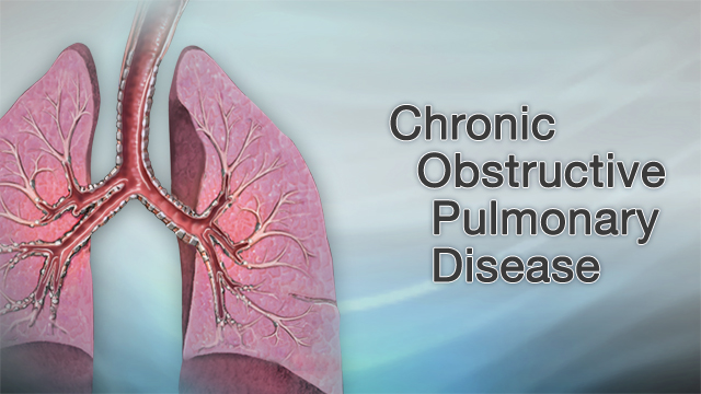 Chronic obstructive pulmonary disease (COPD) - A D A M  Interactive