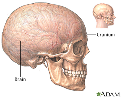 Craniotomy - series - A.D.A.M. Interactive Anatomy - Encyclopedia