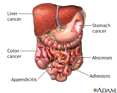 Abdominal exploration - A.D.A.M. Interactive Anatomy - Encyclopedia