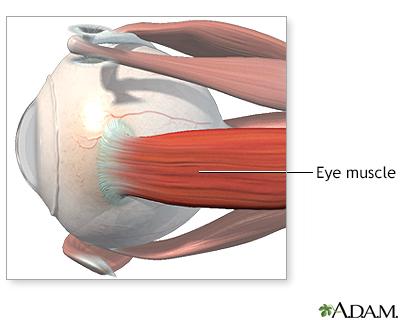 Eye Muscle Repair Adam Interactive Anatomy Encyclopedia