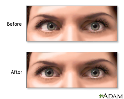 Eye Muscle Repair A D A M Interactive Anatomy Encyclopedia