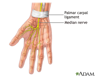 Carpal tunnel release - A.D.A.M. Interactive Anatomy - Encyclopedia