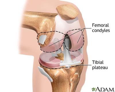 Knee Joint Replacement Series Adam Interactive Anatomy