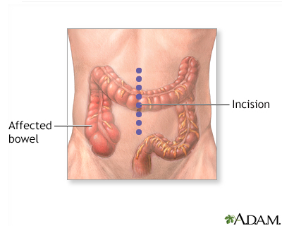 Large bowel resection - A.D.A.M. Interactive Anatomy - Encyclopedia