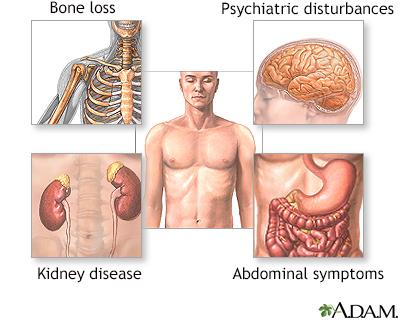 Parathyroid gland removal - A.D.A.M. Interactive Anatomy - Encyclopedia