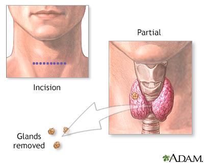 Parathyroid Gland Removal Adam Interactive Anatomy Encyclopedia