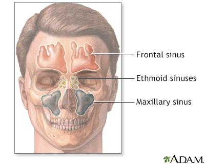 Sinusitis - A.D.A.M. Interactive Anatomy - Encyclopedia