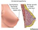 Intraductal papilloma