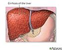 Cirrhosis of the liver