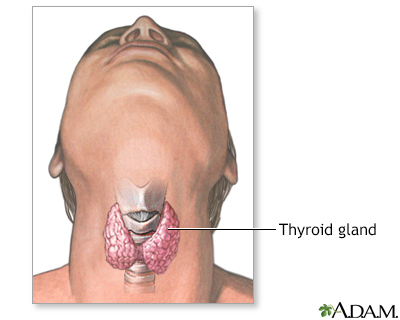 Thyroid gland removal - A.D.A.M. Interactive Anatomy - Encyclopedia