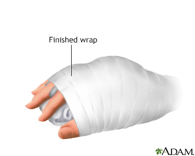 How To Make A Splint A D A M Interactive Anatomy