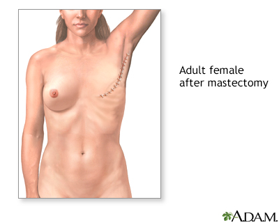Breast cancer masectomy