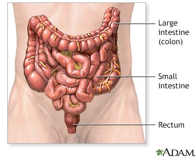 Colon And Rectal Cancer Adam Interactive Anatomy Encyclopedia