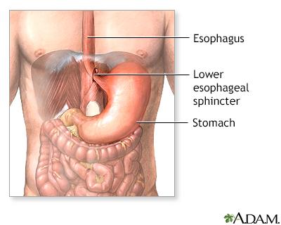 Gastroesophageal Reflux Series Adam Interactive Anatomy