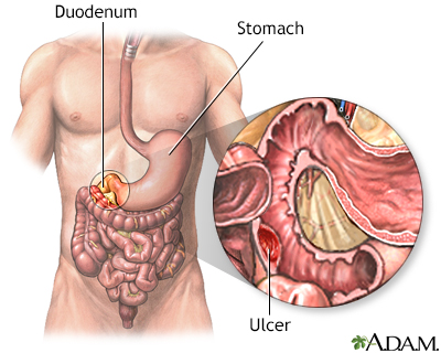 Gastrointestinal Bleeding Adam Interactive Anatomy Encyclopedia