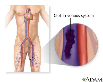 Deep Vein Thrombosis Adam Interactive Anatomy Encyclopedia
