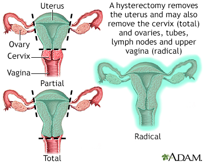 Hysterectomy Adam Interactive Anatomy Encyclopedia