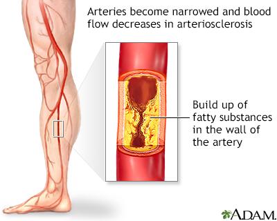 Peripheral Artery Disease Legs Adam Interactive Anatomy
