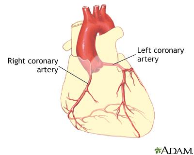 Hardening Of The Arteries Adam Interactive Anatomy Encyclopedia