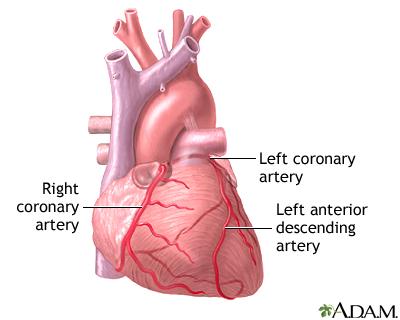 Heart Bypass Surgery Series Adam Interactive Anatomy