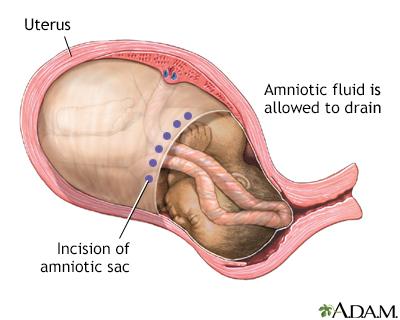 C Section Adam Interactive Anatomy Encyclopedia