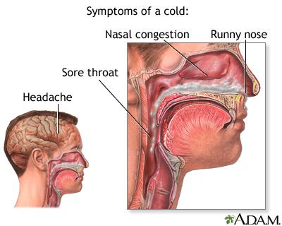 Common cold - A.D.A.M. Interactive Anatomy - Encyclopedia