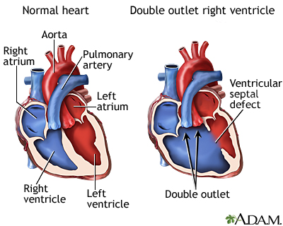 Double Outlet Right Ventricle Adam Interactive Anatomy