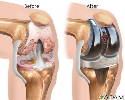 Knee Joint Replacement Adam Interactive Anatomy Encyclopedia