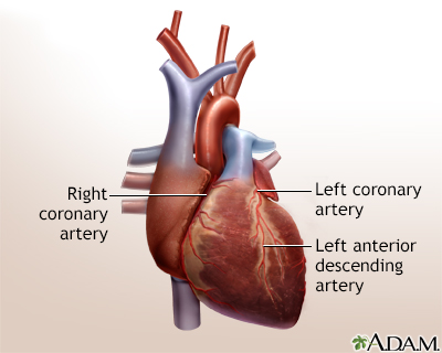 Heart Bypass Surgery Adam Interactive Anatomy Encyclopedia