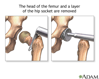 Hip Joint Replacement Series Adam Interactive Anatomy