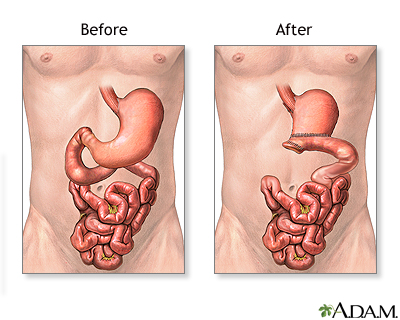Stomach Cancer Adam Interactive Anatomy Encyclopedia