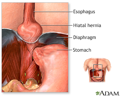 Hiatal hernia - A.D.A.M. Interactive Anatomy - Encyclopedia