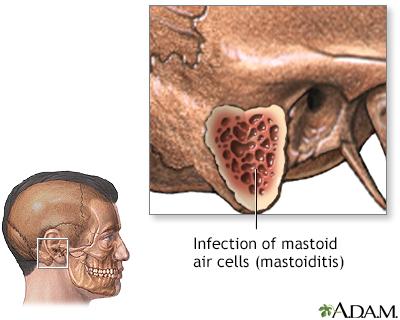 Mastoiditis Adam Interactive Anatomy Encyclopedia