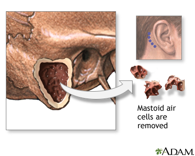 Mastoiditis - A.D.A.M. Interactive Anatomy - Encyclopedia