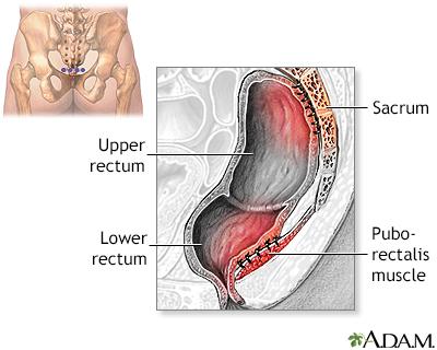 Rectal prolapse - A.D.A.M. Interactive Anatomy - Encyclopedia