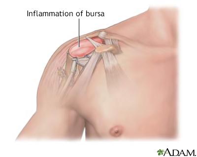 Shoulder Pain Adam Interactive Anatomy Encyclopedia