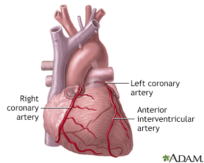 Anterior Heart Arteries Adam Interactive Anatomy Encyclopedia