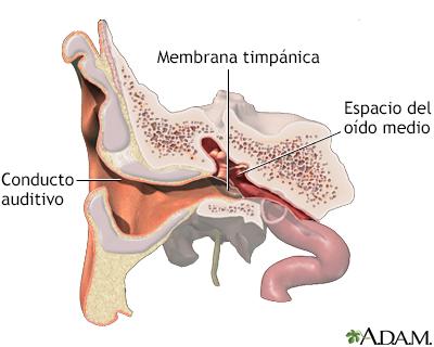 Infección aguda del oído - A.D.A.M. Interactive Anatomy - Encyclopedia