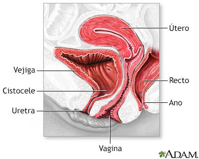 Reparación de la pared vaginal anterior - A.D.A.M. Interactive ...