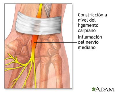 Liberación del túnel carpiano - A.D.A.M. Interactive Anatomy ...