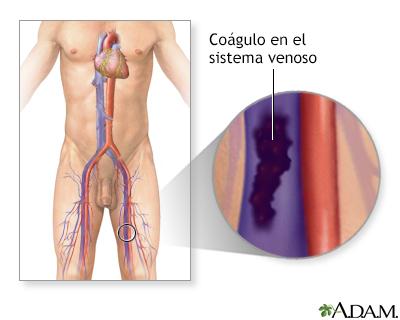 Trombosis venosa profunda - A.D.A.M. Interactive Anatomy - Encyclopedia