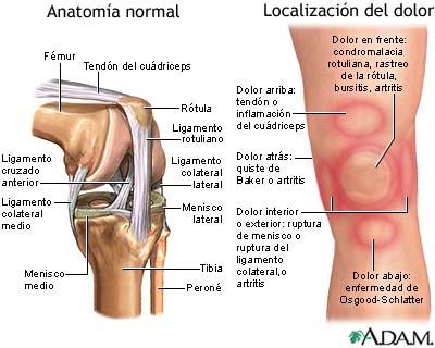 Dolor de rodilla - A.D.A.M. Interactive Anatomy - Encyclopedia