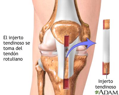 Lesión del ligamento cruzado anterior (LCA) - A.D.A.M. Interactive ...