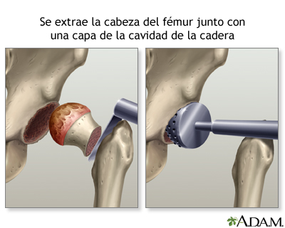 Reemplazo de la articulación de la cadera - A.D.A.M. Interactive ...