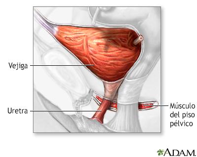 Incontinencia urinaria de esfuerzo - A.D.A.M. Interactive Anatomy ...