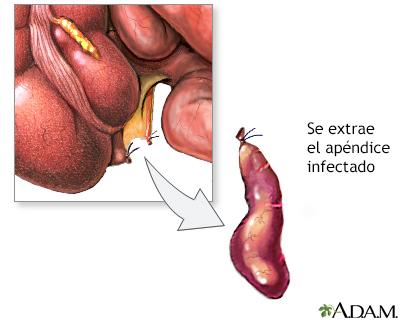 Apendicitis - A.D.A.M. Interactive Anatomy - Encyclopedia