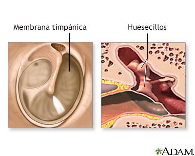 Reparación quirúrgica del tímpano - Serie
