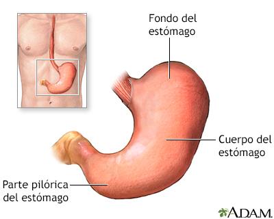 Cáncer gástrico - A.D.A.M. Interactive Anatomy - Encyclopedia