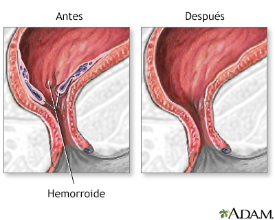 Hemorroides - A.D.A.M. Interactive Anatomy - Encyclopedia